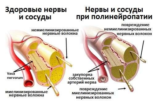 Діабетична полінейропатія: симптоми і лікування