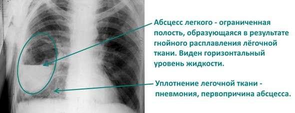 Абсцес легені: симптоми і лікування