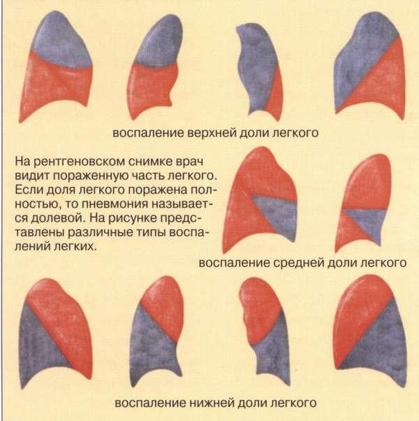 Часткова пневмонія: симптоми і лікування