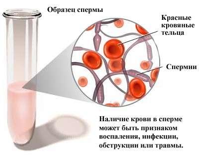 Епідидиміт: симптоми і лікування