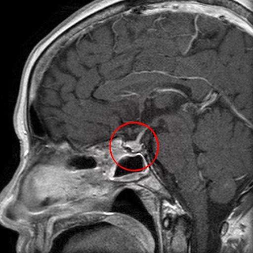 Микроаденома гіпофіза: симптоми і лікування