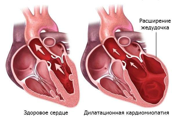 Дилатаційна кардіоміопатія: симптоми і лікування
