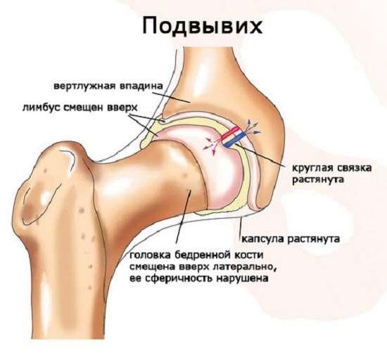 Дисплазія кульшового суглоба: симптоми і лікування
