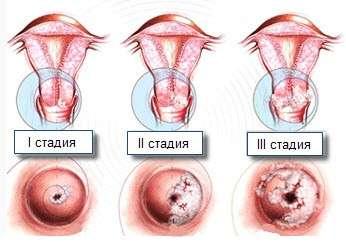 Дисплазія шийки матки: симптоми і лікування