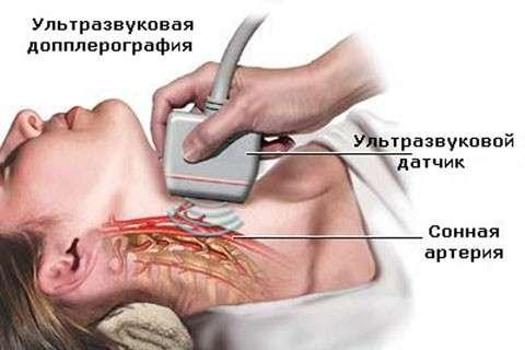 Лимфангиома: симптоми і лікування