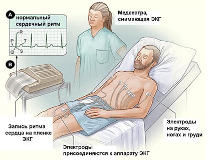 Рабдоміоліз: симптоми і лікування