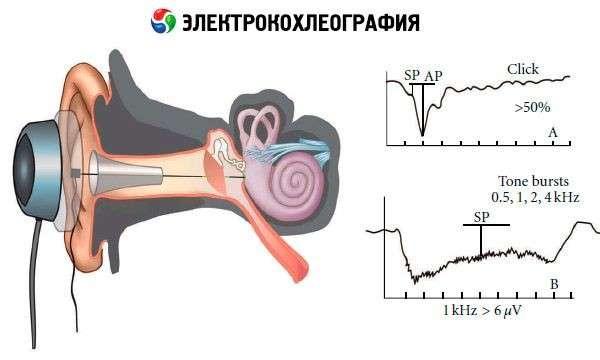 Нейрофіброма: симптоми і лікування