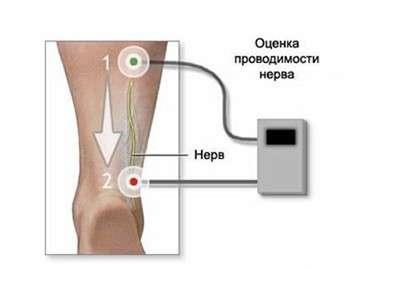 Миотония: симптоми і лікування