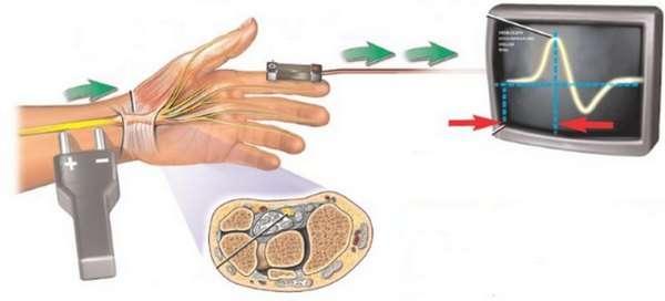 Поліневропатія: симптоми і лікування