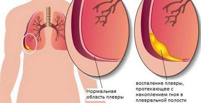 Емпієма плеври: симптоми і лікування