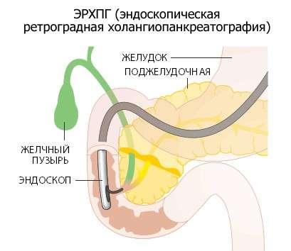 Дискінезія жовчного міхура: симптоми і лікування