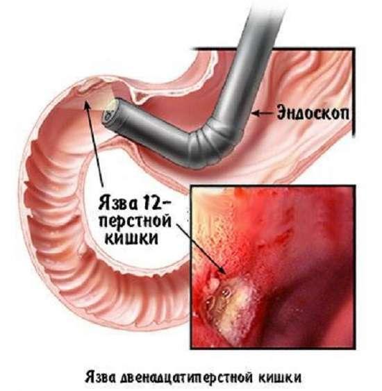 Виразка дванадцятипалої кишки: симптоми і лікування