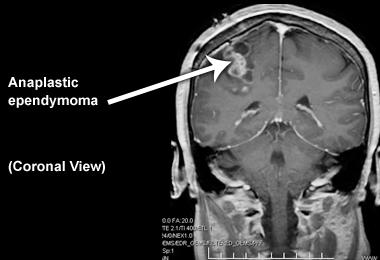 Епендимома: симптоми і лікування