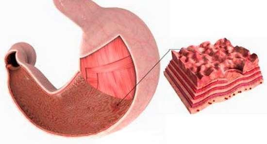 Ерозивний гастрит: симптоми і лікування