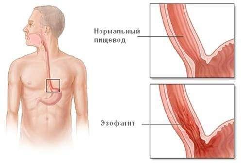 Езофагіт: симптоми і лікування