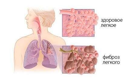 Фіброз легень: симптоми і лікування