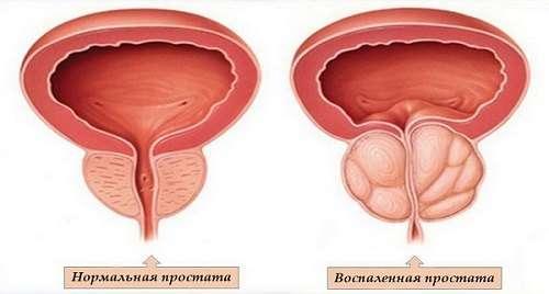 Фіброз (склероз) простати: симптоми і лікування