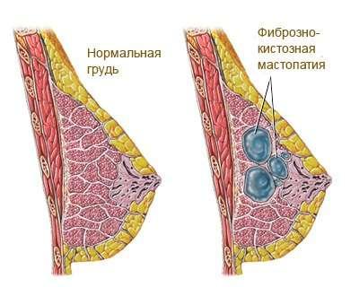 Фіброз: симптоми і лікування