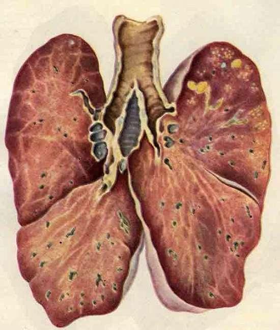 Туберкульоз: симптоми і лікування