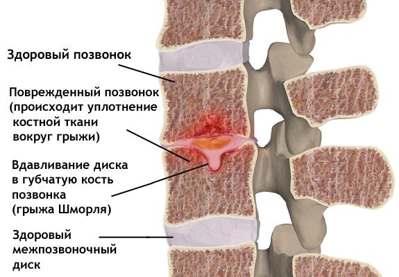Грижа Шморля: симптоми і лікування