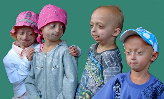 Прогерия: симптоми і лікування