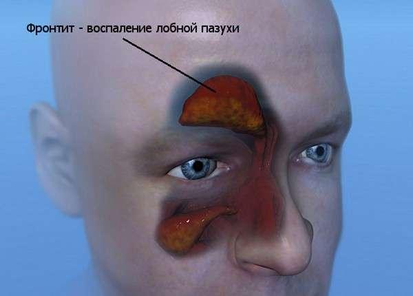 Фронтит: симптоми і лікування