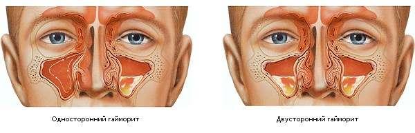 Гайморит: симптоми і лікування