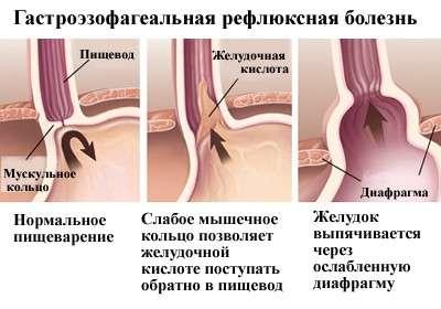 Гастроезофагеальна рефлюксна хвороба: симптоми і лікування