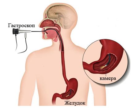 Аерофагія: симптоми і лікування