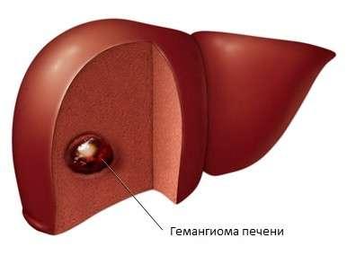 Гемангіома печінки: симптоми і лікування
