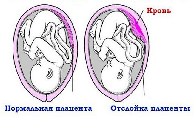 Гематома при вагітності: симптоми і лікування