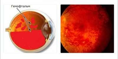 Діабетична ретинопатія: симптоми і лікування