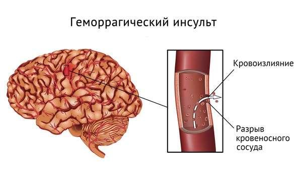 Крововилив у мозок: симптоми і лікування