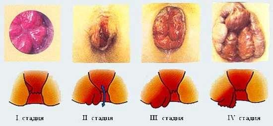Геморой: симптоми і лікування