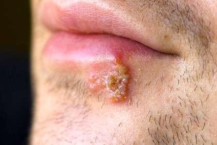 Герпес на губах: симптоми і лікування