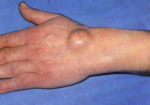 Гігрома кисті руки: симптоми і лікування