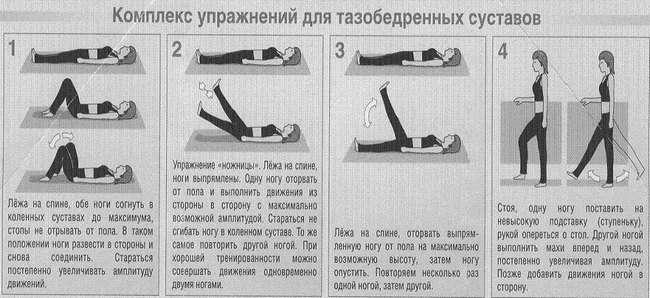 Артроз кульшового суглоба: симптоми і лікування