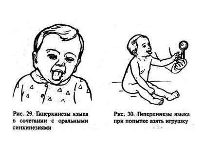 Гиперкинез: симптоми і лікування