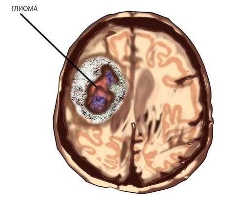 Гліома головного мозку: симптоми і лікування