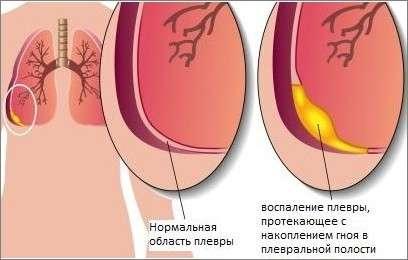 Плеврит: симптоми і лікування