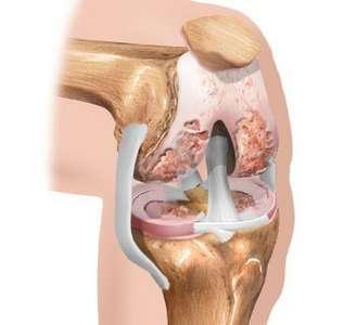 Артроз колінного суглоба: симптоми і лікування