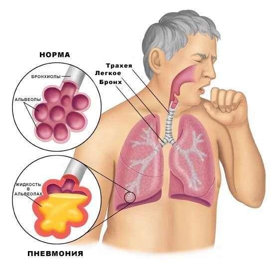 Грибкова пневмонія: симптоми і лікування