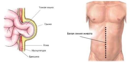 Грижа білої лінії живота: симптоми і лікування