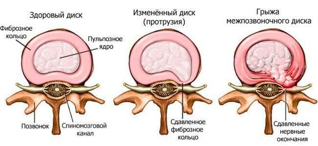 Грижа грудного відділу хребта: симптоми і лікування