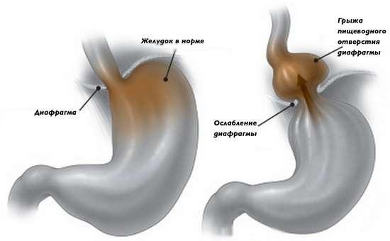 Грижа стравохідного отвору діафрагми: симптоми і лікування