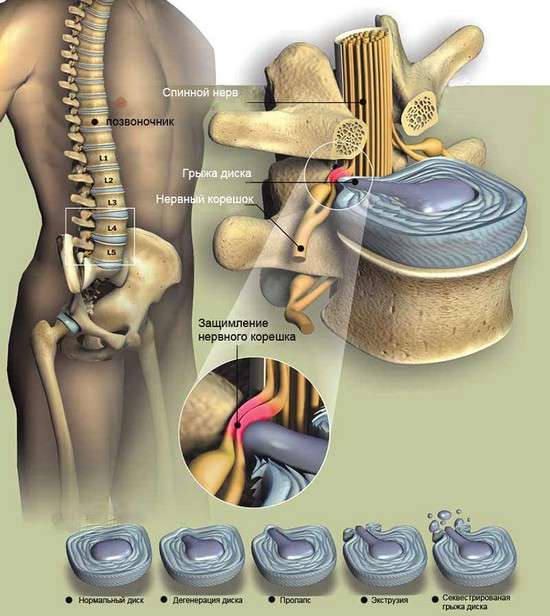 Грижа поперекового відділу хребта : симптоми і лікування
