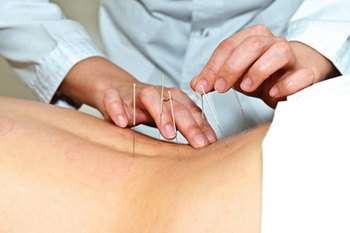 Люмбоішіалгія: симптоми і лікування
