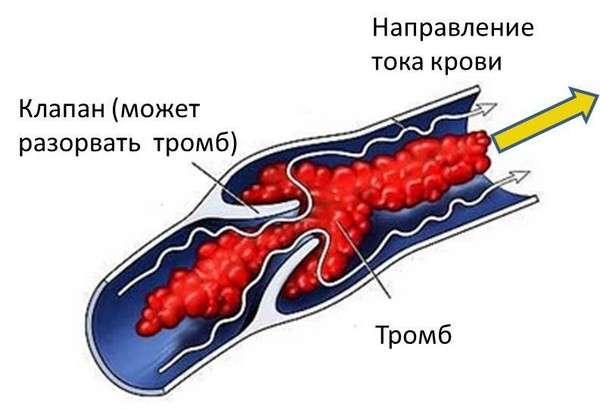 Тромбоз: симптоми і лікування
