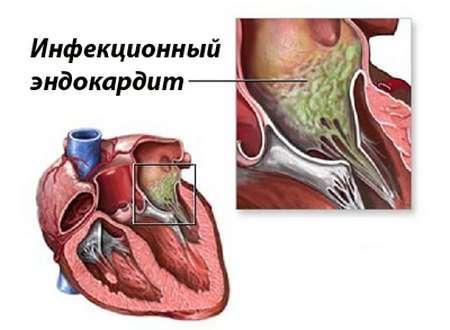 Інфекційний ендокардит: симптоми і лікування
