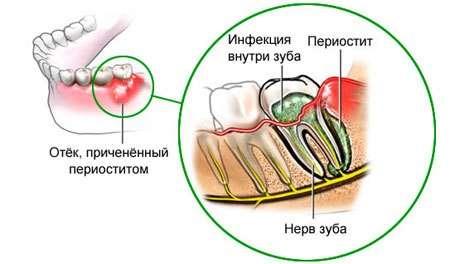 Періостит (флюс): симптоми і лікування